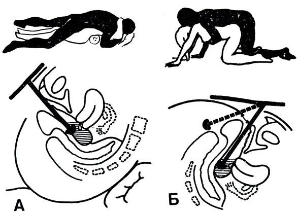 spermatozoidi-dobirayutsya-do-matki